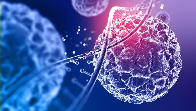 Marginal Zone B Cell Lymphoma